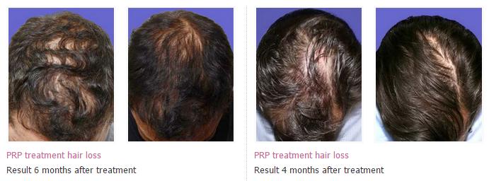 prp hair loss treatment 1